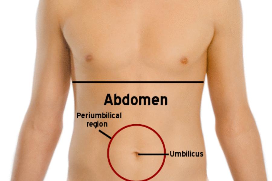 Como sei se tenho hérnia abdominal?