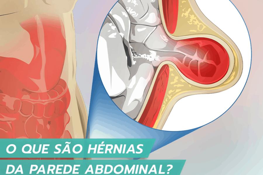 O que são as hérnias da parede abdominal?