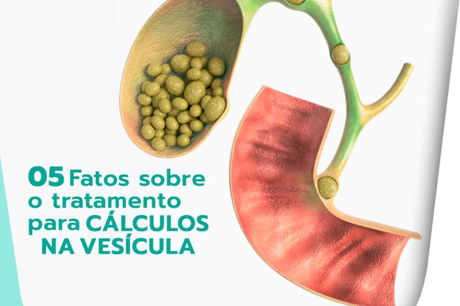 5 fatos sobre o tratamento para cálculos na vesícula