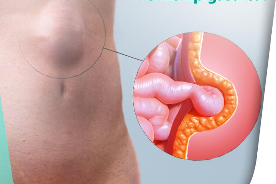 O que é uma hérnia epigástrica?