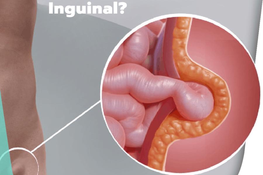 O que é uma hérnia inguinal?