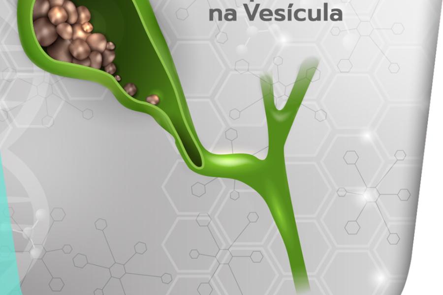 04 fatores de risco para cálculos na vesícula