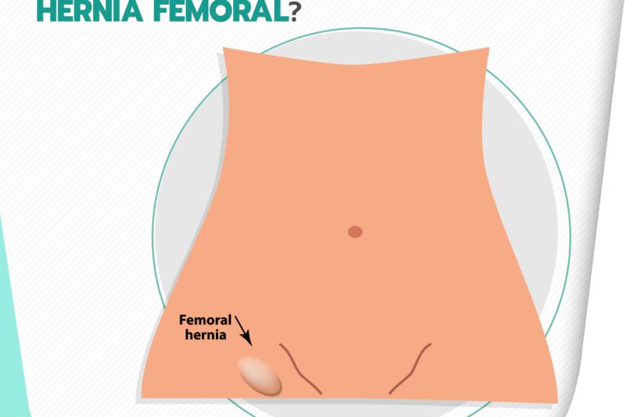 Você conhece a hérnia femoral?