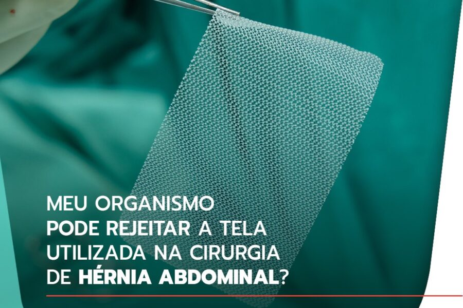 Meu organismo pode rejeitar a tela utilizada na cirurgia de hérnia abdominal?