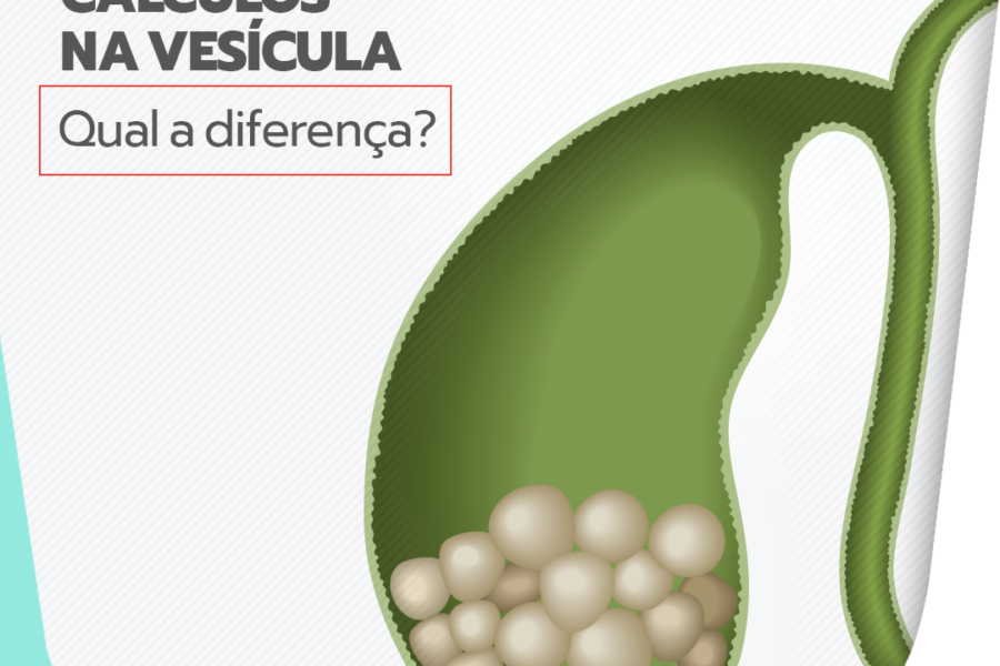 Pólipos x cálculo na vesícula: qual a diferença?