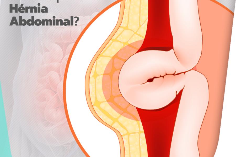 O intestino pode ser afetado por uma hérnia abdominal?