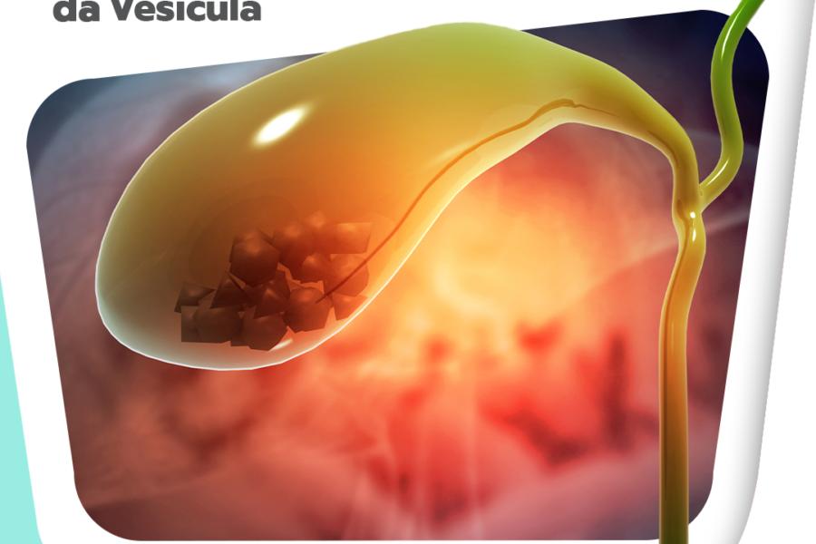 4 mitos e verdades sobre cirurgia da vesícula