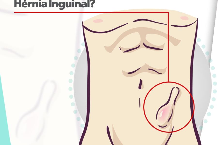 O que acontece se eu não operar a minha hérnia inguinal?