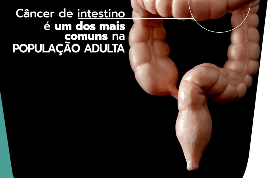 Câncer de intestino é um dos mais comuns na população adulta