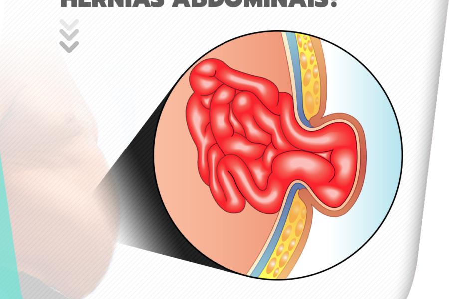 A obesidade causa hérnias abdominais?