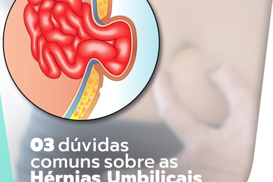 03 dúvidas comuns sobre as hérnias abdominais