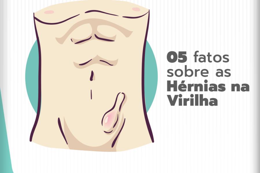 05 fatos sobre as hérnias na virilha