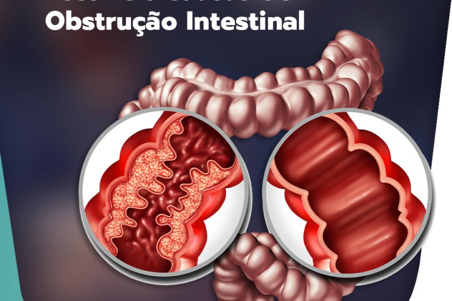 03 possíveis causas da obstrução intestinal